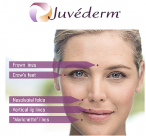 Fillers (JUVEDERM PRODUCTS)