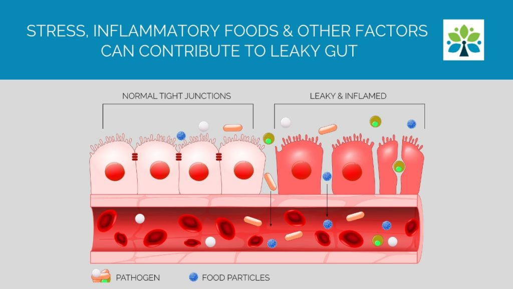 Stress, Inflammatory Foods and Other Factors can Contribute to Leaky Gut